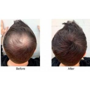 Загуститель волос Caboki 30 гр. Dark brown